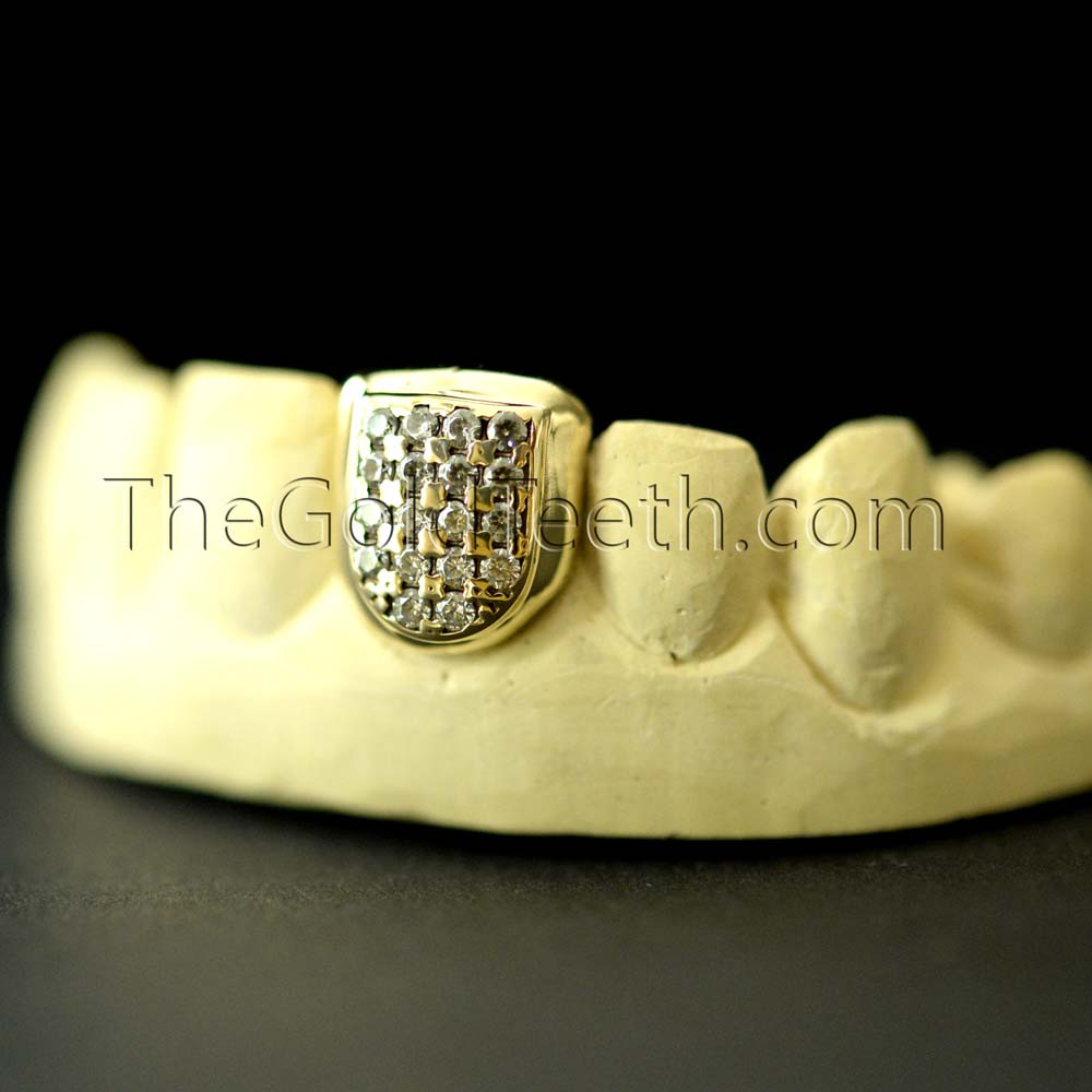 Iced Out Gold Teeth Grillz Cap - IGC 807 - TheGoldTeeth.com 5f7f6398d